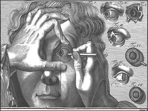 eye 1 - cataracts