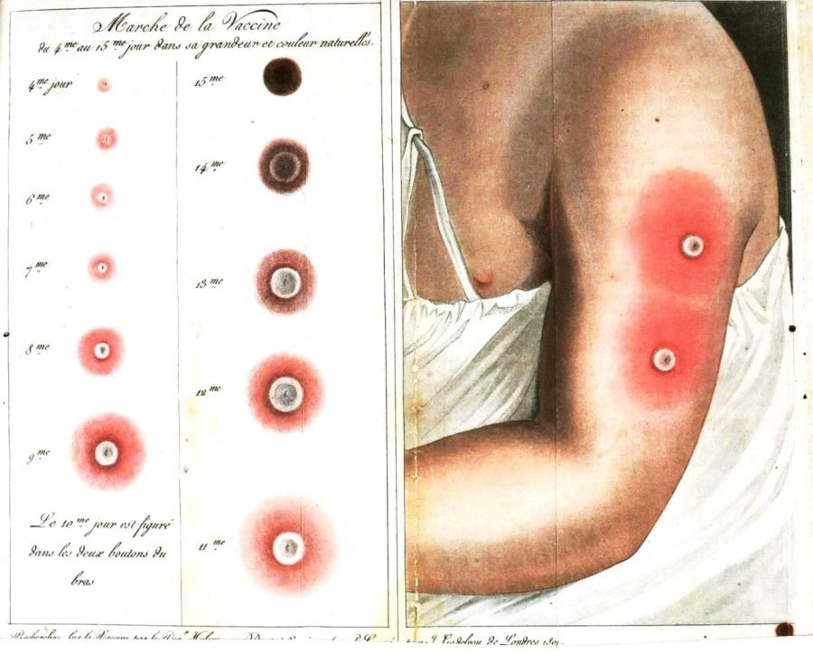 smallpox lesions